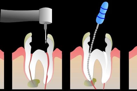 terapia-endodontica-pesaro