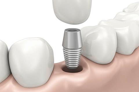 implantologia-pesaro