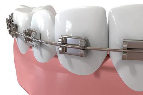 ortodonzia-pesaro